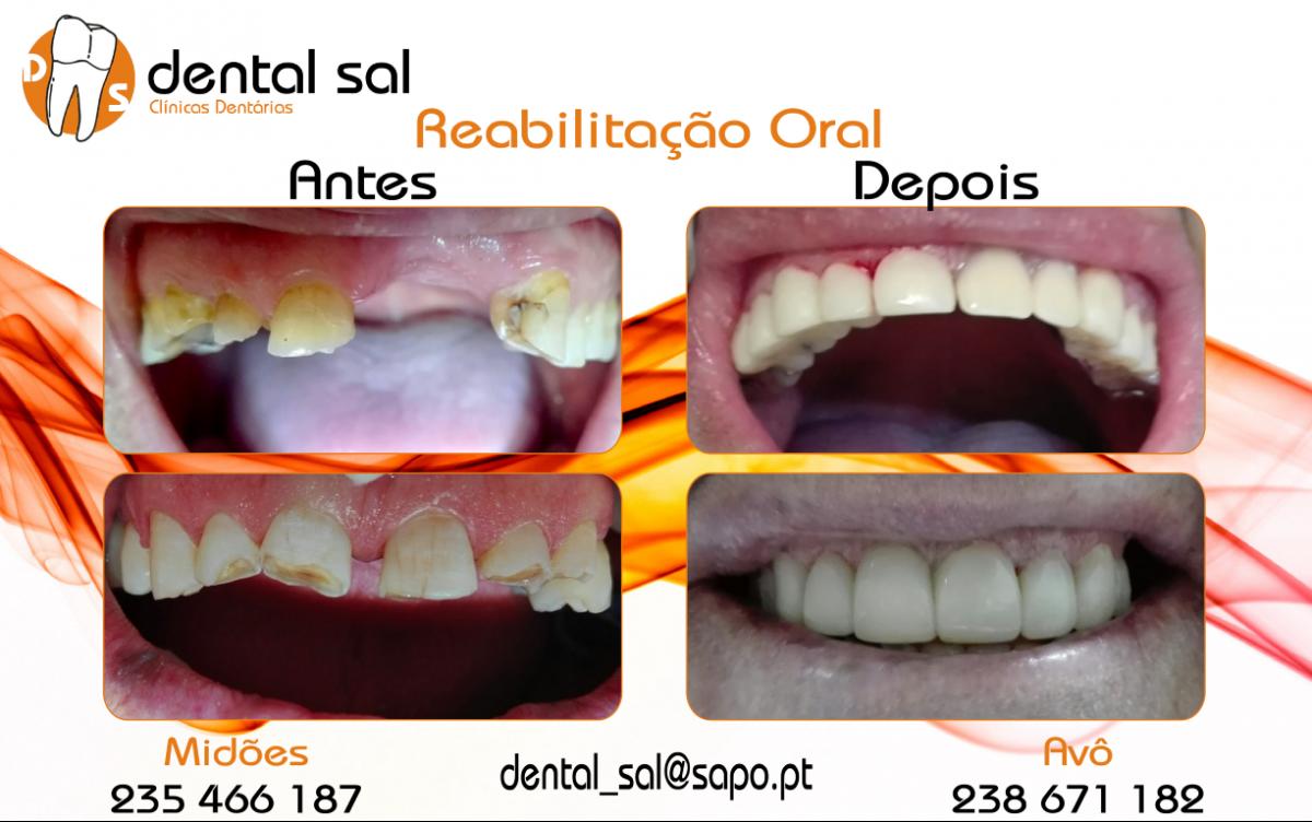 Reabilitação-Oral-Medium-1200x752.png
